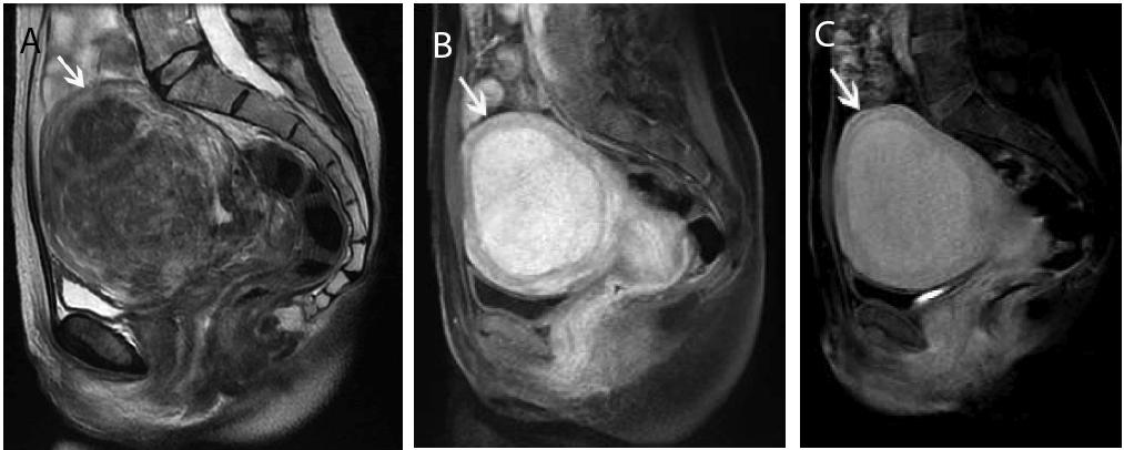 imaging-medicine-Sagittal-t2-images-pre-ablation-8-2-77-g003.png