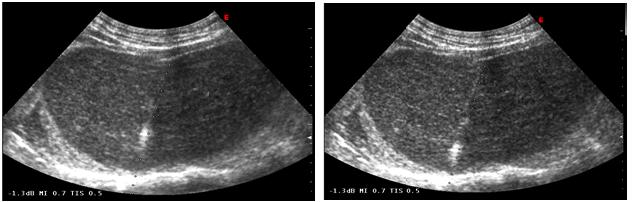 imaging-medicine-progressively-increases-8-2-65-g001.png
