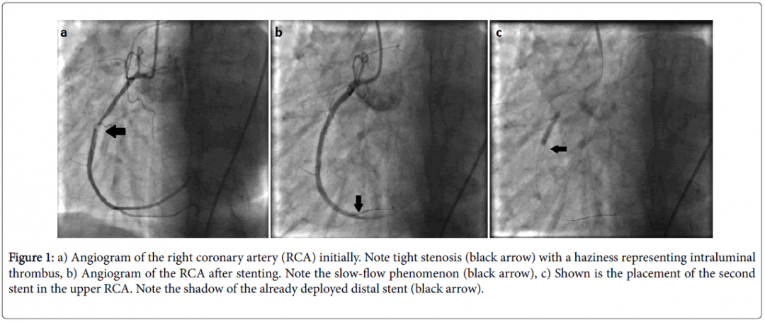 newemergency-medicine-angiogram-right-coronary-5-275-g001.png
