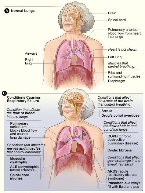 Respiratory_failure.jpg