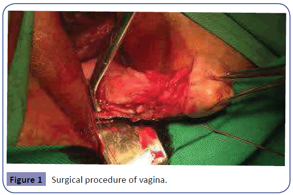 Obstetrics-Surgical-procedure-1-1-4-g001.png