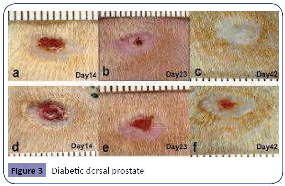Obstetrics-dorsal-prostate-1-1-4-g003.png
