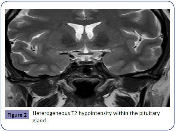 Obstetrics-Heterogeneous-2-1-7-g002.png