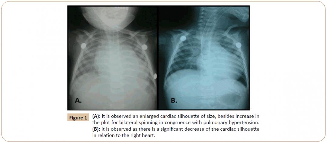 newpediatrics-enlarged-cardiac-3-1-6-g001.png