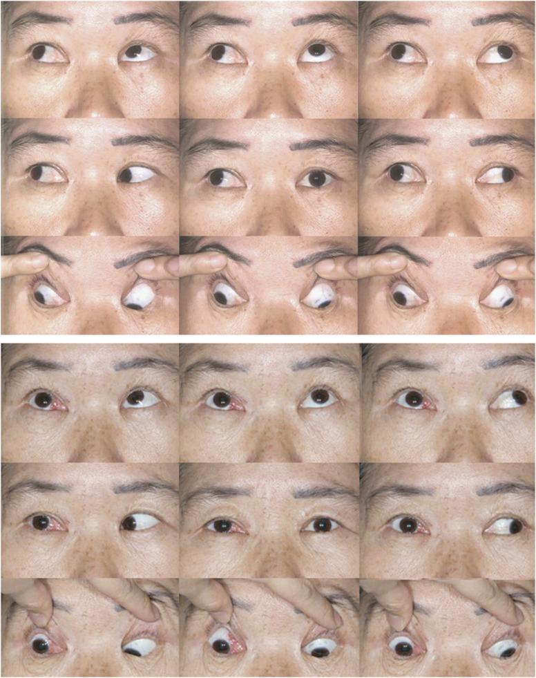 eye201615f1.jpg
