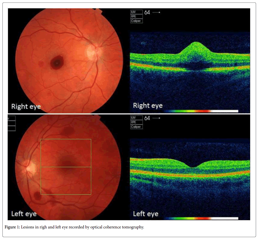 clinical-experimental-ophthalmology-Lesions-righ-8-632-g001.png