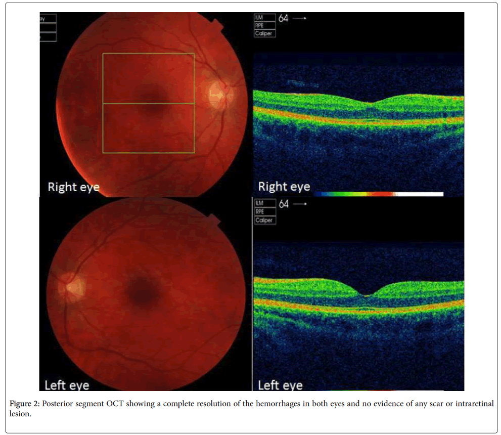 clinical-experimental-ophthalmology-Posterior-segment-8-632-g002.png