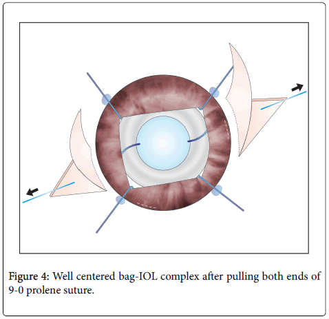 clinical-ophthalmology-prolene-pulling-8-633-g004.png