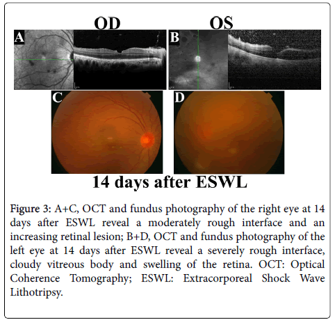 clinical-ophthalmology-rough-interface-8-639-g003.png