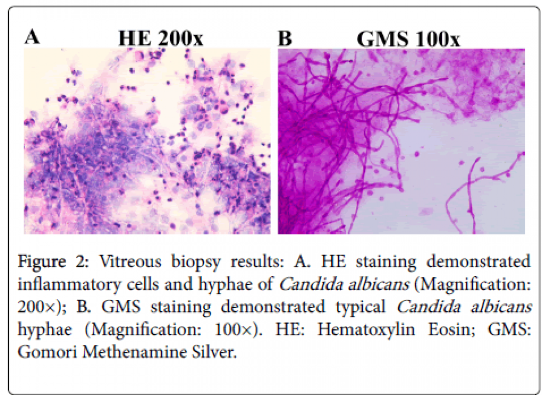 newclinical-ophthalmology-hyphae-biopsy-8-639-g002.png