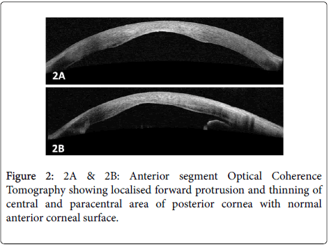 clinical-ophthalmology-Anterior-segment-7-612-g002.png