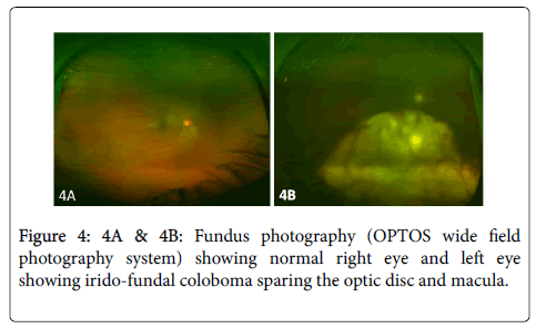 clinical-ophthalmology-Fundus-photography-7-612-g004.png