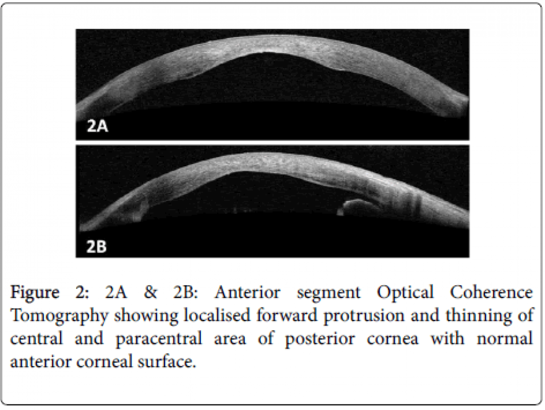 newclinical-ophthalmology-Anterior-segment-7-612-g002.png