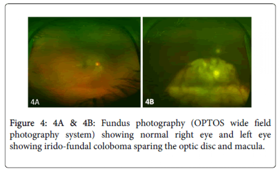 newclinical-ophthalmology-Fundus-photography-7-612-g004.png
