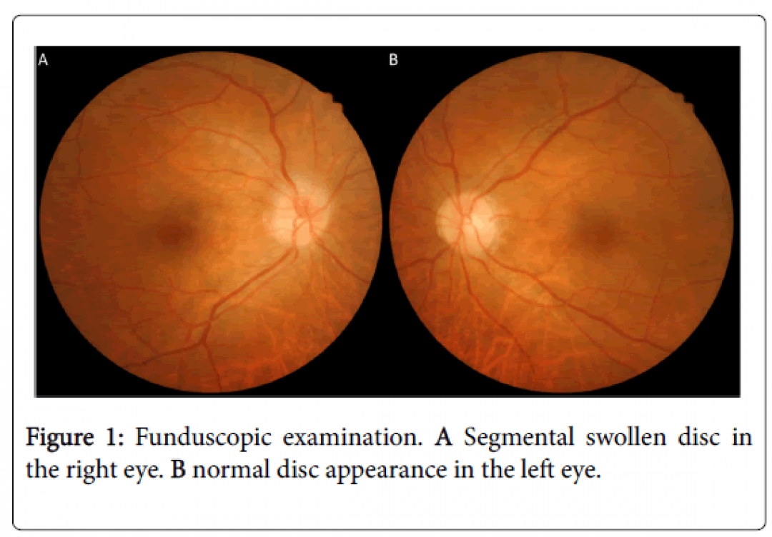 newclinical-experimental-ophthalmology-Funduscopic-examination-7-600-g001.png
