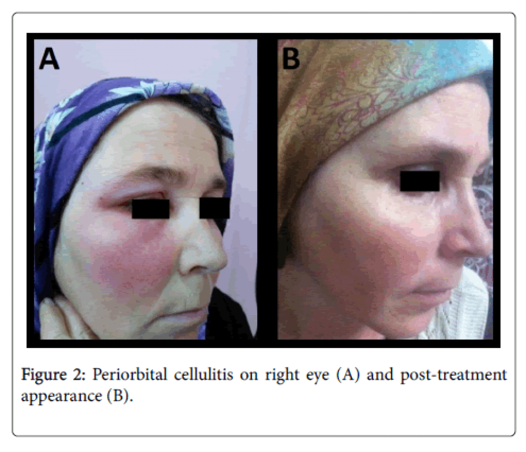 newclinical-experimental-ophthalmology-Periorbital-cellulitis-8-643-g002.png