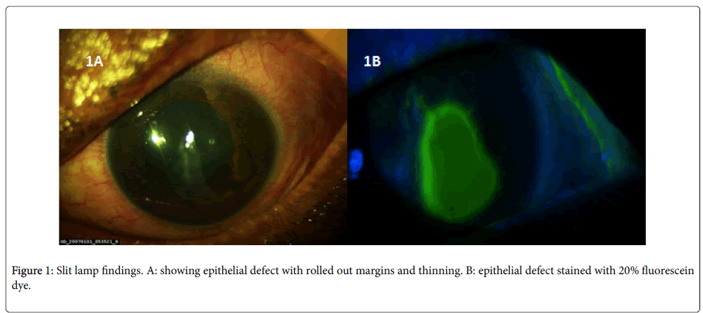clinical-ophthalmology-epithelial-defect-8-649-g001.png