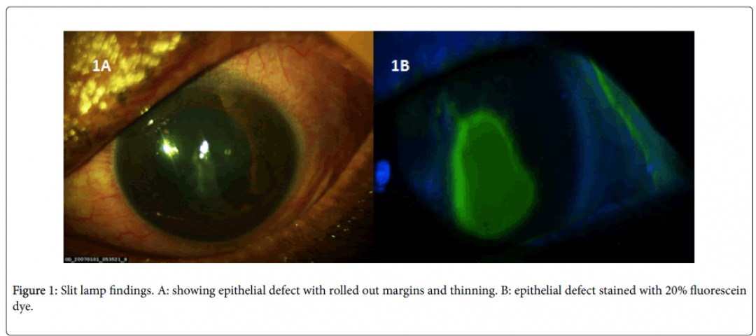 newclinical-ophthalmology-epithelial-defect-8-649-g001.png