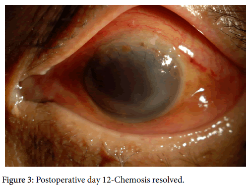 clinical-experimental-ophthalmology-Postoperative-day-7-565-g003.png