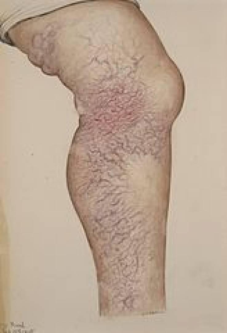 newvaricose+veins.jpg