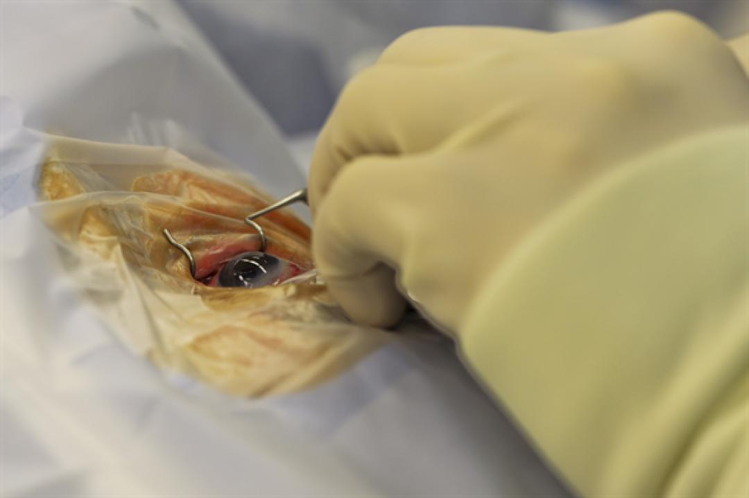 newcorneal+surgery.JPG