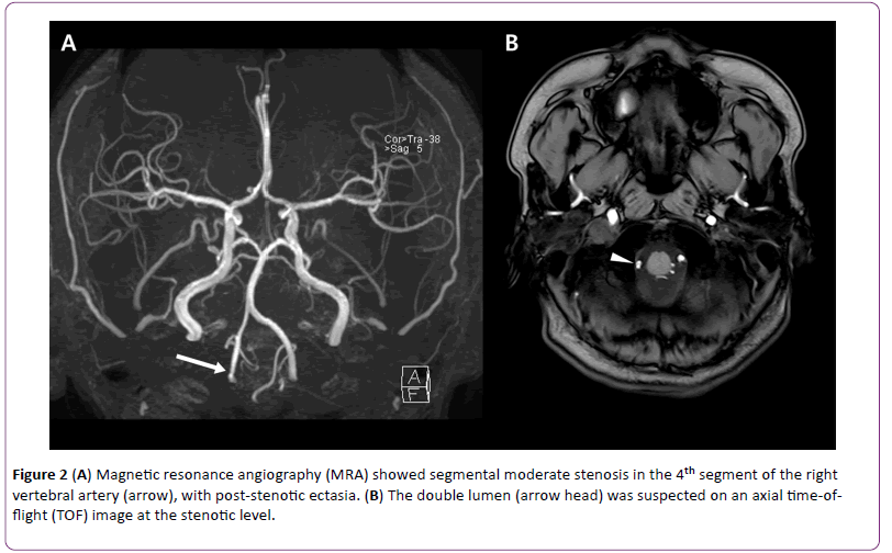 jneuro-Magnetic-resonance-angiography-7-6-162-g002.png