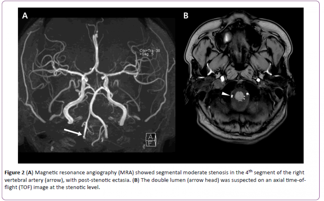 newjneuro-Magnetic-resonance-angiography-7-6-162-g002.png