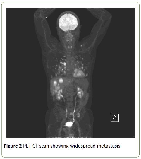 jneuro-PET-CT-scan-widespread-metastasis-8-2-184-g002.png