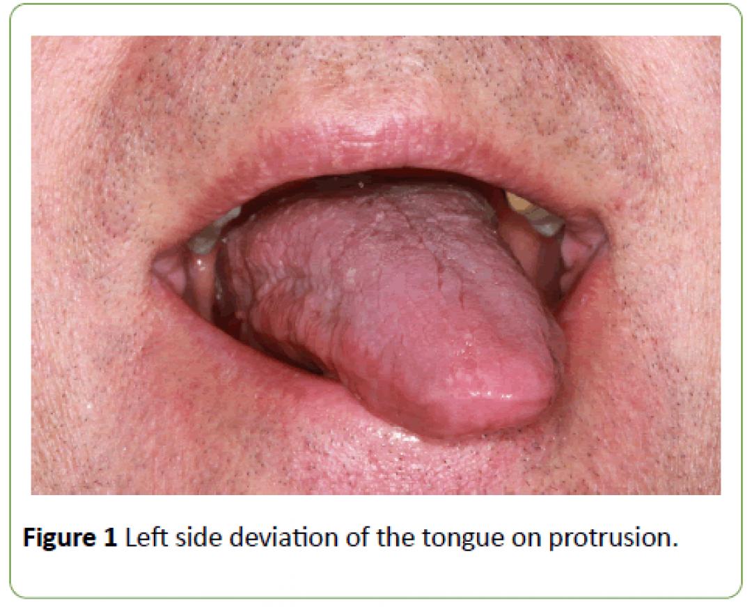 newjneuro-Left-side-deviation-tongue-protrusion-8-2-184-g001.png