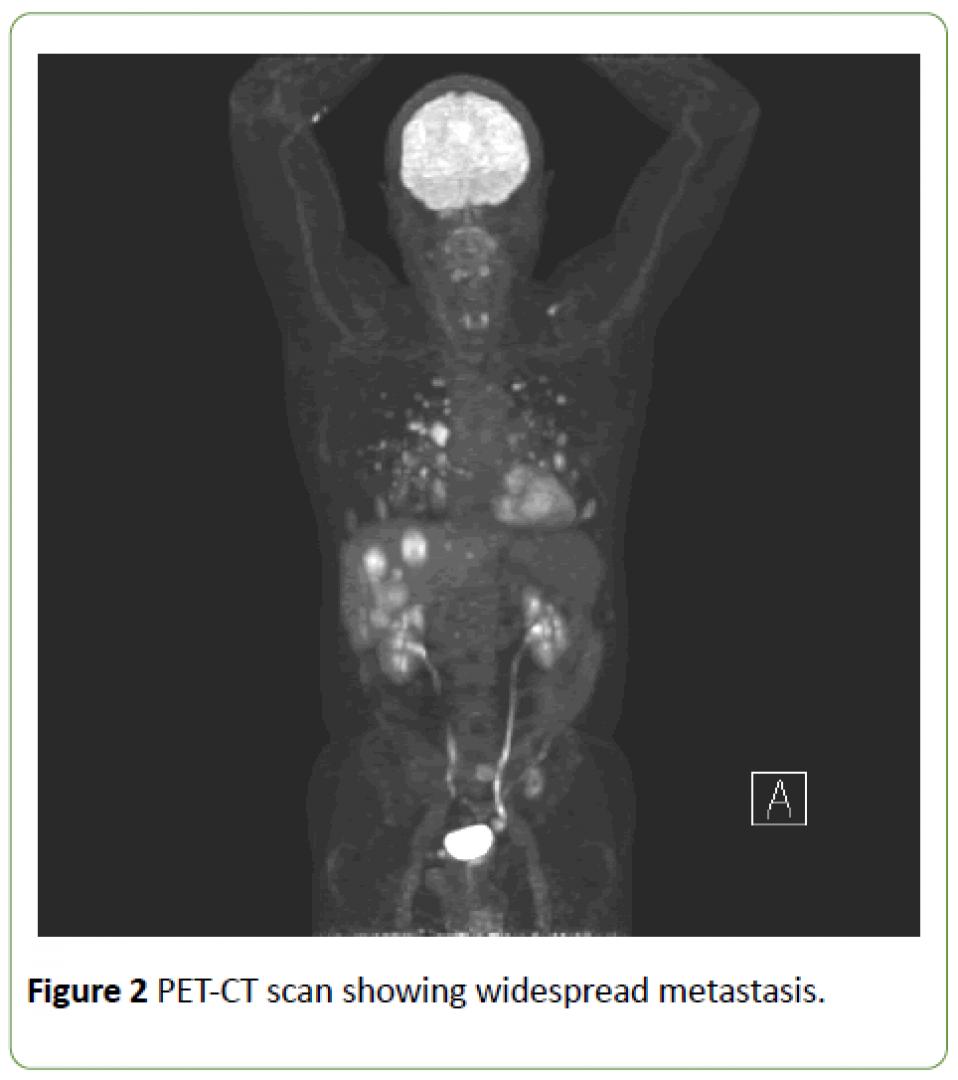 newjneuro-PET-CT-scan-widespread-metastasis-8-2-184-g002.png