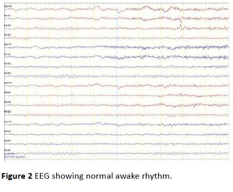 jneuro-normal-awake-rhythm-7-4-137-g002.png