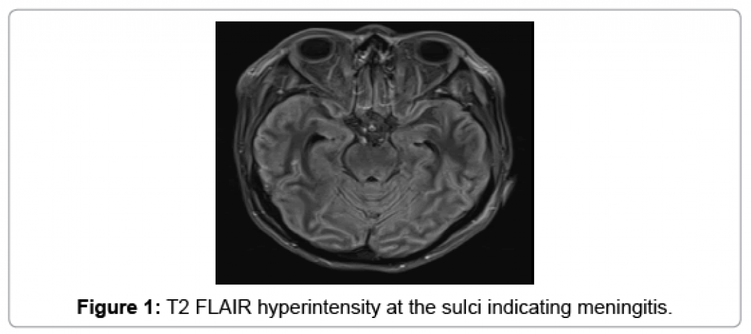 newclinical-case-reports-sulci-indicating-7-958-g001.png
