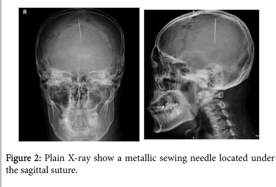 neurology-neurophysiology-sagittal-suture-8-420-g002.png