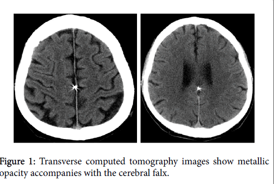 neurology-neurophysiology-tomography-images-8-420-g001.png