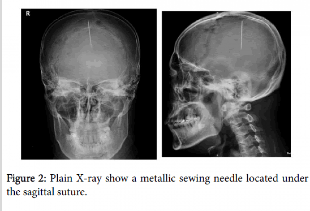 newneurology-neurophysiology-sagittal-suture-8-420-g002.png