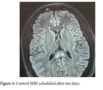 neuroinfectious-diseases-Control-MRI-scheduled-8-249-g004.png