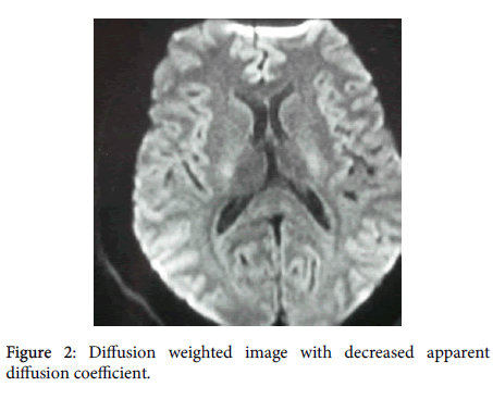 neuroinfectious-diseases-Diffusion-weighted-8-249-g002.png