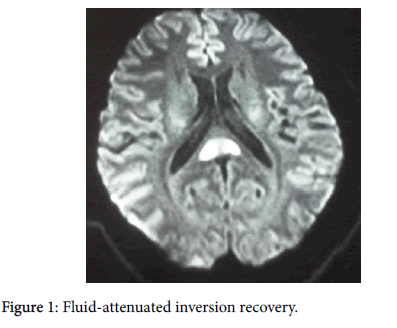 neuroinfectious-diseases-Fluid-attenuated-8-249-g001.png