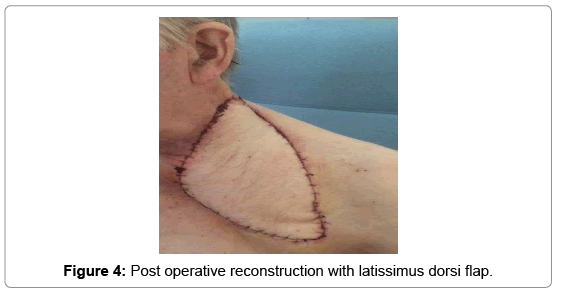 clinical-case-reports-Post-operative-7-962-g004.png