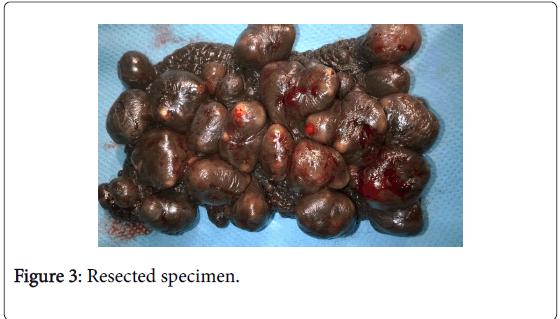 medical-surgical-urology-Resected-specimen-6-185-g003.png