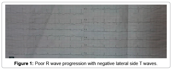 clinical-case-reports-wave-progression-7-967-g001.png