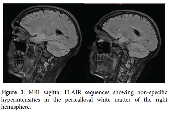 neurology-neurophysiologys-specific-hyperintensities-7-391-g003.png