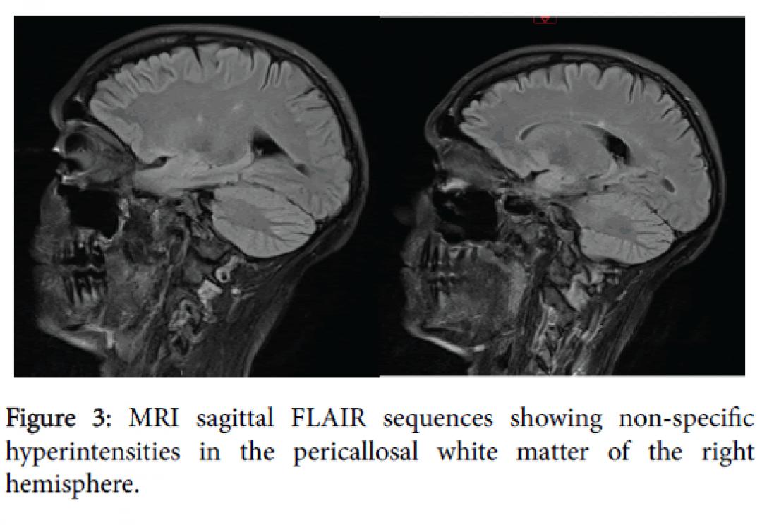 newneurology-neurophysiologys-specific-hyperintensities-7-391-g003.png