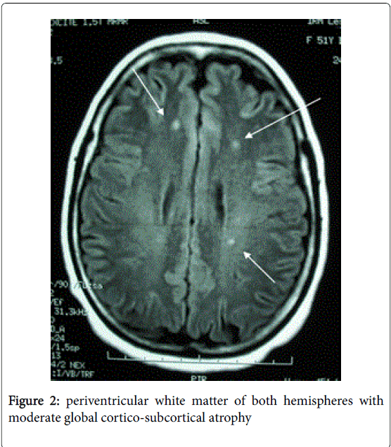 multiple-hemispheres-moderate-4-200-g002.png