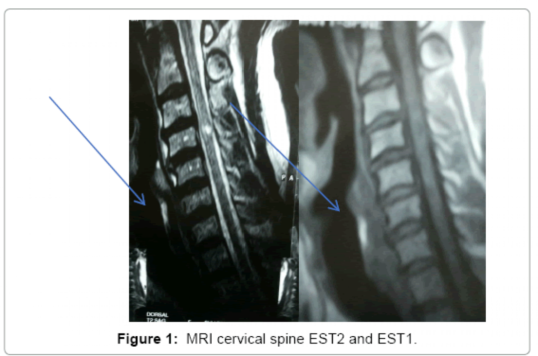 newneurological-disorders-cervical-spine-5-341-g001.png