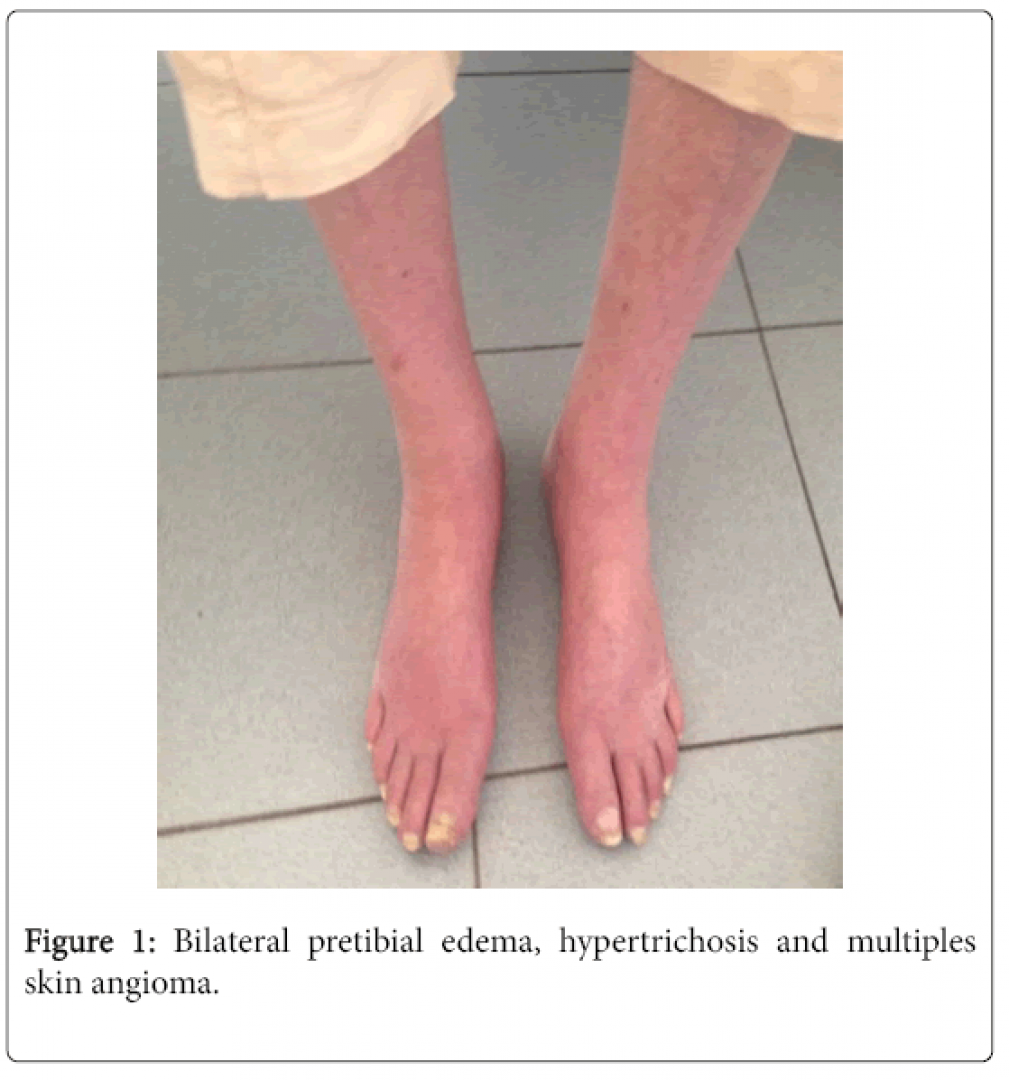 newneurological-disorders-Bilateral-pretibial-5-332-g001.png