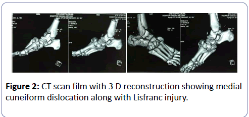 clinical-experimental-orthopedics-CT-scan-3-1-30-g002.png
