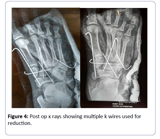 clinical-experimental-orthopedics-multiple-wires-3-1-30-g004.png