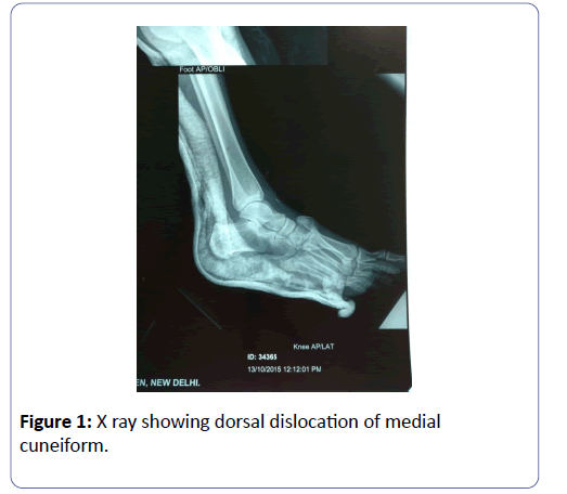 clinical-experimental-orthopedics-showing-dorsal-3-1-30-g001.png