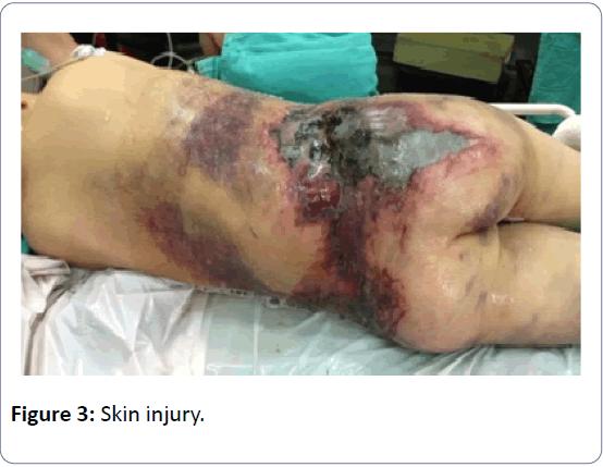 orthopedics-skin-injury-2-3-23-g003.png